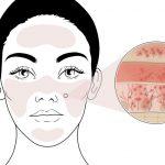 Problémás bőrök kezelése